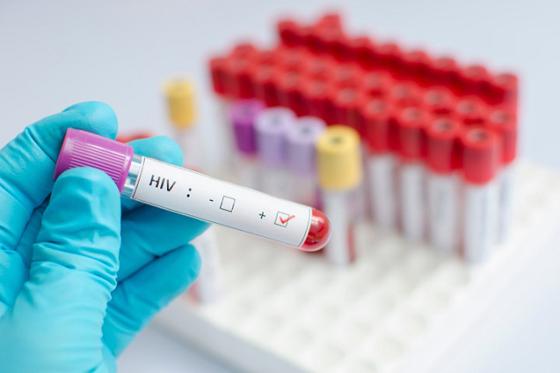 Анонимность и конфиденциальность гарантированы! Анализ на ВИЧ в Кобрине